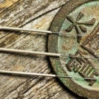 Har du ondt i ryggen er akupunktur en god behandlingsmulighed