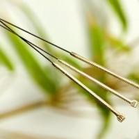 Akupunktur kan afhjælpe rygsmerter